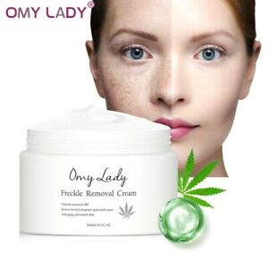 Freckle Removal Facial Cream Remove Pregnant Spots Melanin Dark Spots Anti Aging