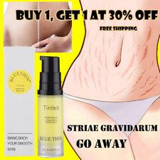 Stretch Marks And Scar Removal Stretch Mark Maternity Skin Body Repair Cream 6ML