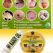 Kasoy Cashew Cream Removes Moles Warts And More Free Cashew Oil 3ml