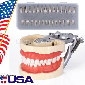 Kilgore NISSIN 200 Type Dental Teach Typodont Model M8012 / Permanent Teeth
