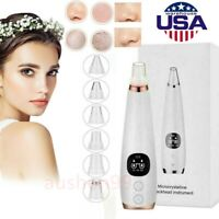 New Electric Face Skin Care Pore Blackhead Cleaner Remover Vacuum Acne Cleanser