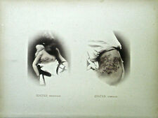Hand Colored Collotype From Photographic Illustrations of Skin Diseases (III)