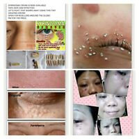 Syringoma Remover 2ml With Free Kasoy Oil 100% Authentic Safe Effective