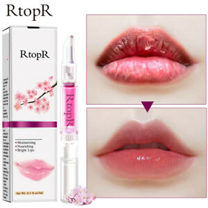 RtopR Cosmetics Cherry Lip Balm Lip Treatment Lipstick Dry Crack Peeling Mask