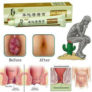 Antibacterial Chinese Herbal Hemorrhoids Cream Treatment Internal Piles Relief
