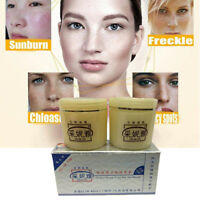 Woman Dark Spot Corrector Skin Whitening Cream Lightening Blemish Removal Serum