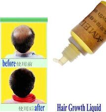 Hair Growth Essence Loss Oil Treatment Fast Natural Liquid Organic Regrowth Grow