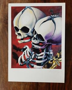 Skull Twins art print siamese twins on etching rag paper