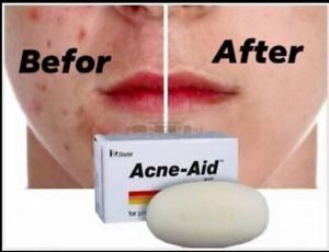 Stiefel Acne-Aid Soap Bar 100g Pimple Prone & Oily Acne Skin Cleansing Pimple