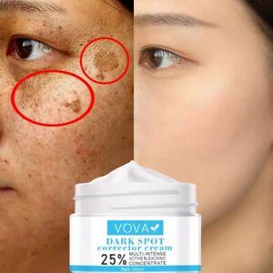 Vova Whitening Face Cream Anti Aging, Remove Dark Spot, Freckle, Acne & Pigment
