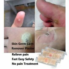 5* Corn Removal Plasters Pad Medicated Foot Callus Foot Health Relief Pain Banda