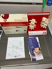 Vintage Evista Spine Compression Fracture Anatomical Model Vertebrae Vertebral