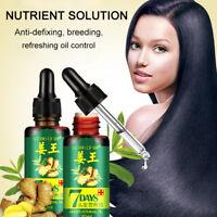 30ml Hair Loss Treatment Ginger Hair Care Growth Essence Oil for Men Women