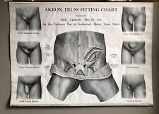 Antique Akron Truss Hernia Fitting Chart Drug Store Advertising Quack Medical