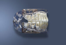Dental Pathology Model,Child,Patient Education,High Quality,Detailed,*NEW*