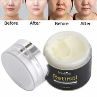 50ml Retinol 2.5% Hyaluronic Acid Vitamin E Moisturizer Face Cream Anti Aging