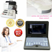 2018 Newest Portable B Ultrasound Scanner Laptop Diagnostic Systems CONVEX Probe