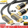 Braided HDMI Cable High Speed v2.0 Ultra HD 4K 3D For PS3 PS4 XBOX HDTV 0.5-5M