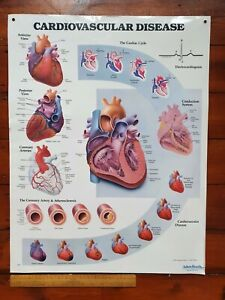 Collectable illustrated medical poster - Cardiovascular Disease by Adam, Rouilly