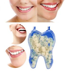 Dental Temporary Crown Patch Porcelain Material Anterior Film Molar Teeth YW