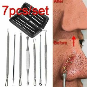 Stainless Steel Blackhead Remover Extractor Pimple Spot Acne Popper Beauty Tool