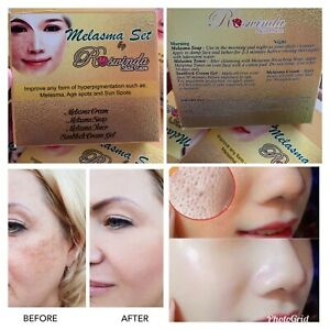 Melasma Set Remove Dark Spot Blemishes Acne Pimples Hyperpigmentation and more