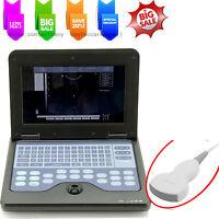PromoCE Digital Notebook Diagnostic Machine Ultrasound Scanner,3.5M convex probe