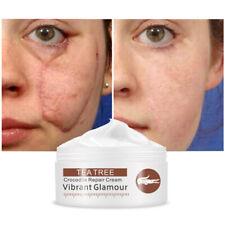 30g Crocodile Scars Stretch Marks Blackhead Remove Whitening Skin Repair Cream