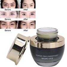 30g Eye Cream Gel For Dark Circles Puffiness Wrinkles Bags Anti-Aging Eye Care