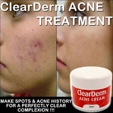 CLEARDERM ACNE CREAM CLINICALLY PROVEN WORKS FAST BEAUTIFUL FRESH CLEARSKIN