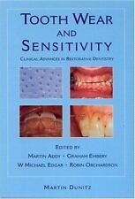 Tooth Wear and Sensitivity: Clinical Advances in Restorative Dentistry-ExLibrary