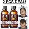 2 x Hair Regrow 7 Day Ginger Germinal Serum Essence Oil Hair Dense Regrowth 30ML