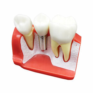 Implant Analysis model Dental Teeth Model Dentistry Products for Teaching
