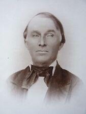 antique CABINET PHOTO CARD photograph man w glass eye OAKLEY RAVENNA OHIO