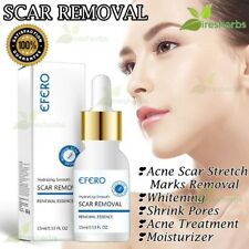Face Scar Removal Stretch Marks Skin Whitening Acne Large Pores Treatment 15ml