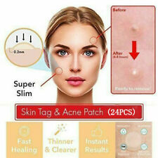 Perfect Tea Tree Skn Tagg Patch 24pcs Acne Pimple Patch Invisible Stickers Skin