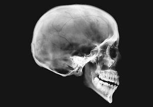 X-RAY human SKULL imaged onto high quality photographic film light box 227x160mm