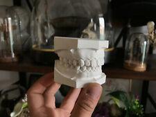 Cabinet de curiosités Oddities moulage dentaire en plâtre