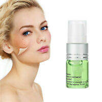 Aloe Gel Skin Tag Remover/Mole Remover/Wart Remover Works All Natural Treatment