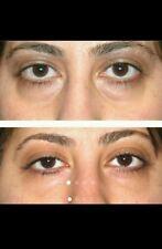 baggy saggy dark circles under eye puffy remover eye Care