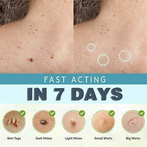 2/4/6/8PCS Small Clip Copper Tag Out Skin Tag Remover Skin Wart Tag Tattoo