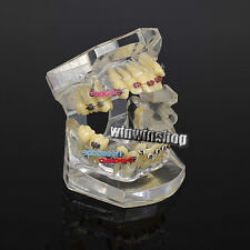 1pc Dental Orthodontic Treatment Study Teeth Model With Bracket Arch Wire