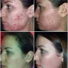 LUMINESCE™ Cleanser & Serum for Blemishes-Pimples-Acne-Potholes-Scars