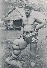 TAHITI c. 1940 - Indigène atteint d'Eléphantiasis  - T 132