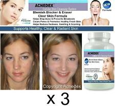 3 Acne Pills Clear Skin Complexion Spots Scars Treatment Cleanser Detox Tablets