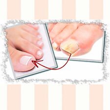 Onyсhomyc the best nail fungus  non -pharmacological treatment  Proven efficacy
