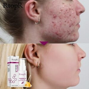 Acne Cleaning Serum Propolis Repair Brightening Scar Spots free shipping