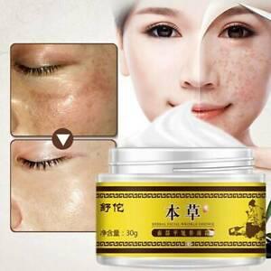 Hyperpigmentation Melasma Treatment Facial Care Whitening Cream Reduce Freckle
