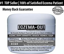 EczemaOut eczema Cream Rosacea Atopic Dermatitis Severe Dry skin Stop itch 4oz