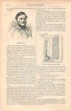 Jean Marie Pichou Maçon Puits de Saint Hilaire à Louviers Eure GRAVURE 1881